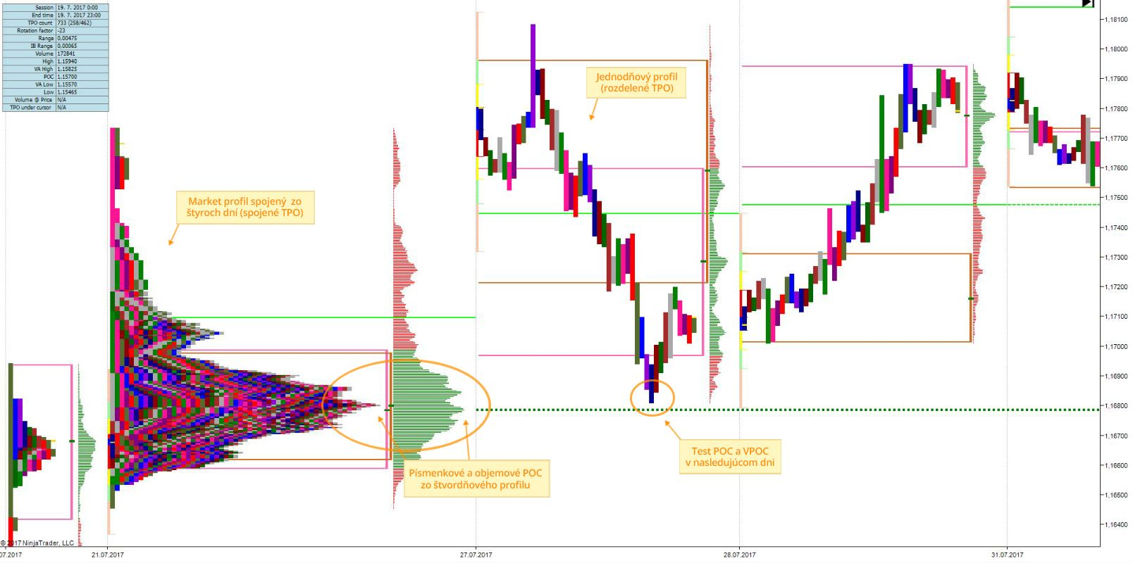 Ukážka použitia metódy Market Profile